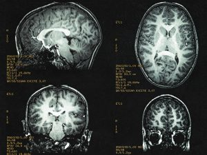 Structural Brain Differences for Transgender People